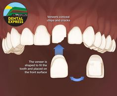 Porcelain Veneers, Cosmetic Dentistry, Appointments, Dental, Cosmetics, Teeth, Dentist Clinic, Tooth, Dental Health