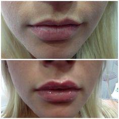www.spabannockburn.co.uk   Dermal Fillers Juvederm Ultrasmile to enhance lips Excellence in Facial Aesthetics!