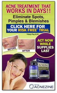 Click Here: http://acneandpimple.com/Acnezine.php  |  Acnezine is an entire skin care management system that finds the source of your acne and not only heals the blemishes you have, but also treats future outbreaks that you don't even see yet!  For more information: http://acneandpimple.com  | http://acneandpimple.com/Acnezine.php