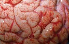 7-diferencias-entre-el-cerebro-del-hombre-y-la-mujer-5.jpg