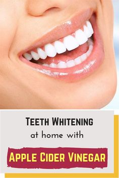 whiten your teeth naturally with apple cider vinegar at home. - Oral and Dental Health Center 2020 Dental Health, Oral Health, Dental Care, Dental Surgery, Dental Implants, Surgery Humor, Surgery Quotes, Dental Hygienist, Dental Bridge Cost