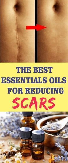 Save Regardless of age, most of us have collected a good collection of scars, some