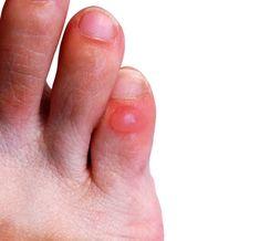 Blaren, die je kan krijgen tijdens het hardlopen, zijn blaasjes gevuld met vocht en ontstaan door wrijving. Meestal ontstaan blaren doordat je sokken of schoenen tegen de huid van de voet schuurt.
