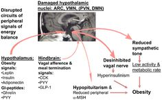 Hypothetical model of disturbed energy homeostasis in hypothalamic obesity. Source (Article): http://journal.frontiersin.org/article/10.3389/fendo.2011.00049/full