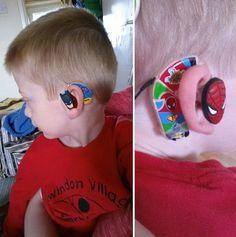 Superhero Hearing Aids Designed By The Coolest Mom http://www.gossipness.com/news/superhero-hearing-aids-designed-by-the-coolest-mom-2084.html