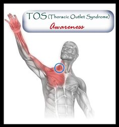 Thoracic Outlet Syndrome (TOS) Awareness Page (www.facebook.com/TOS.Awareness) Thoracic Outlet Syndrome (TOS) occurs when the nerves, veins and arteries that pass through the thoracic outlet become compressed. The thoracic outlet is the space between your collarbone (clavicle) and your first rib. This narrow passageway is crowded with blood vessels, nerves and muscles. It is physically debilitating, causes severe pain and in extreme (vascular) cases be fatal.
