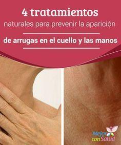4 tratamientos naturales para prevenir la aparición de arrugas en el cuello y las manos Además de mimar la piel del rostro también es importante prestar atención a otras zonas, como son el cuello y las manos y dedicar un tiempo a su cuidado