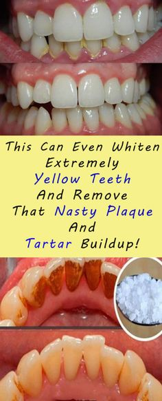 This Can Even Whiten Extremely Yellow Teeth And Remove That Nasty Plaque And Tartar Buildup! This Can Even Whiten Extremely Yellow Teeth And Remove That Nasty Plaque And Tartar Buildup! Teeth Whitening Remedies, Natural Teeth Whitening, Whitening Kit, Remedies For Tooth Ache, Teeth Health, Oral Health, Dental Health, Healthy Teeth, Receding Gums