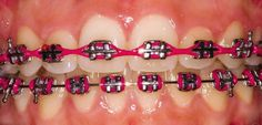 burgundy braces bands. Power chain on top Get the latest in orthodontic treatments at http://OrthoMontreal.com