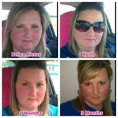 This is my daughter.. Jodi Pogue.. Before/during/after 3 mo on Plexus Slim!