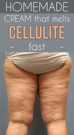 Learn how to prepare a homemade cream that melts cellulite fast.