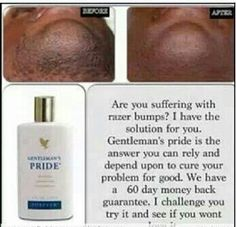 Suffering from razor bumps? Try our Gentleman's pride and see the difference, comes with 60 day money back guarantee. Forever Living Clean 9, Forever Living Aloe Vera, Forever Aloe, Aloe Vera Skin Care, Aloe Vera Gel, Belly Fat Drinks, Forever Business, Razor Bumps, Aloe Leaf