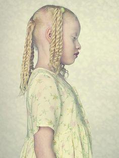 Gustavo-Lacerda albino portraits