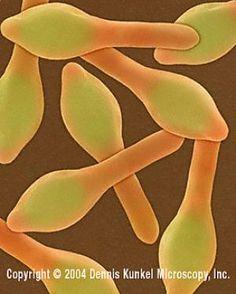 Clostridium botulinum - Copyright Dennis Kunkel Microscopy