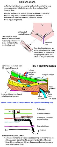 Instant Anatomy - Abdomen - Areas/Organs - Inguinal region - Inguinal canal