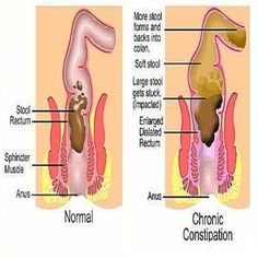 REMEDIES FOR CONSTIPATION If you're suffering from a chronically bloated stomach, there are ways to help prevent it. These 10 powerful remedies reduce bloating in just a. Baby Constipation Remedies, Bloating And Constipation, Constipation Relief, Relieve Bloating, Stomach Bloating Remedies, Supplements For Constipation, Essential Oils For Constipation, Ways To Relieve Constipation, Health Tips