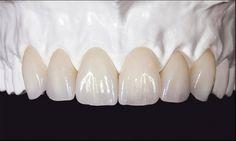 Trite Dental Crowns Before And After Tips Dental Implant Surgery, Teeth Implants, Dental Art, Dental Teeth, Happy Dental, Dental Anatomy, Dental Technician, Dental Veneers, Perfect Teeth
