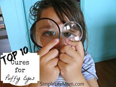 Top 10 Natural Cures for Puffy Eyes and Dark Circles - Simple Life Mom