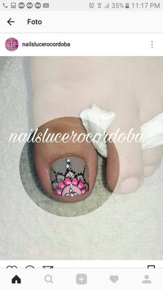 Wow Nails, Pretty Toe Nails, Cute Toe Nails, Crazy Nails, Cute Nail Art, Easy Nail Art, Cute Pedicure Designs, Toe Nail Designs, Pedicure Nail Art