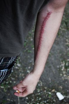 This reminds me of my art teacher Bc like he cut his arm and had this nasty purple and blue scar. Ye. cringe.