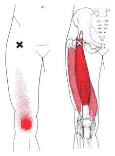 Rectus Femoris The Trigger Point & Referred Pain Guide Massage Tips, Massage Techniques, Massage Therapy, Medical Symptoms, Referred Pain, Dry Needling, Sports Therapy, Trigger Point Therapy, Sciatica Pain