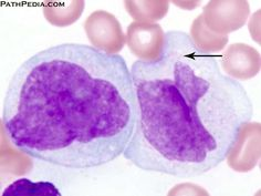Acute monoblastic-monocytic leukemia (AML-M5), histopathology image