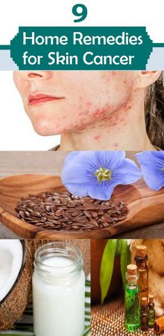 Top 9 Home Remedies for Skin Cancer