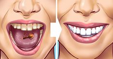 Tartar stains on your teeth can lead to several problematic issues resulting in weak teeth and even teeth loss in early age. Here are 10 helpful and proven natural remedies to get those ugly tartar stains removed from your teeth. Detox Drink Before Bed, Drinks Before Bed, Tartar Removal, Peau D'orange, Remover Manchas, Baking Soda Benefits, Fat Burning Detox Drinks, Natural Teeth Whitening