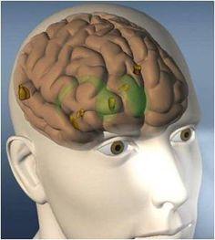 Higher Vitamin D Levels may Benefit Parkinson's Disease Patients