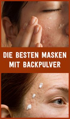 The best masks with baking powder njuskam! The best masks with baking powder njuskam! The best masks with baking powder njuskam! Beauty Makeup Tips, Beauty Make Up, Diy Beauty, Skins Minecraft, Goji, Stealing Beauty, Hair Removal Diy, Brown Spots On Face, Best Masks