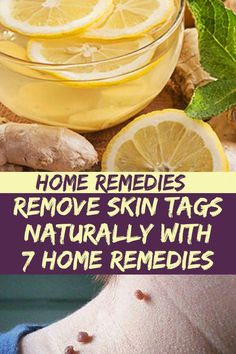 The Best Natural (& Safe) Remedies to Combat Cold/Flu Season – Galg Herbal Remedies, Lemon Juice For Skin, Remove Skin Tags Naturally, Natural Cold Remedies, Skin Tag Removal, Home Remedies For Hair, Natural Medicine, Herbalism