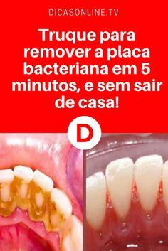 Eliminar tartaro dos dentes | Truque para remover a placa bacteriana em 5 minutos, e sem sair de casa!