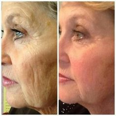 Now in Canada! Amazing Product...no reason not to try it! 30 Day money back guarantee, cancel anytime! http://www.nicolema.nerium.com