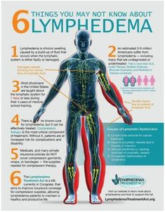 need to know about things need to know about lymphedema.things need to know about things need to know about lymphedema. Lymphatic System: How to Make It Strong & Effective - Dr. Axe How to Unleash Lymphatic Toxins Through Rebounding Lymphatic system . Edema Causes, Lymphatic Drainage Massage, Acupuncture, Reiki Treatment, Lymphatic System, Massage Therapy, Breast Cancer, Medical, Chinese Recipes