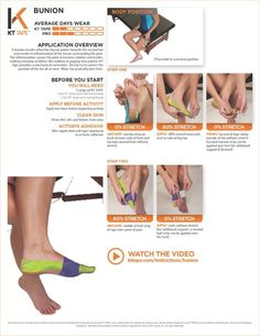 Remedies For Knee Pain - Learn the proper way to use KT Tape to help with bunion at TheraTape. Our step by step guide demonstrates taping technique to improve muscle pain! Bunion Remedies, Foot Remedies, K Tape, Tendinitis, Kinesiology Taping, Muscle Pain, Knee Pain, Injury Prevention, Feet Care
