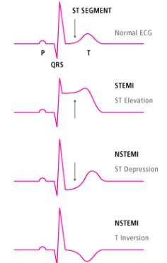 Ekg Interpretation, Exam Study Tips, Myocardial Infarction, Critical Care Nursing, Nursing School Notes, Nursing Tips, Medical Assistant, Cardiology, Health