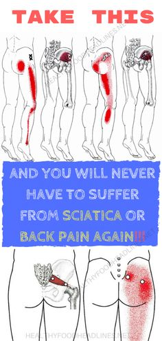 Sciatica is accompanied with pain in the leg and tingling, numbness, or weakness which starts at the bottom of the back, passes through the buttock, and end in the leg. This is a symptom of underly… Sciatica Stretches, Sciatica Pain Relief, Sciatic Pain, Sciatic Nerve, Nerve Pain, Back Pain Relief, Stretching Exercises, Sciatica Symptoms, Hip Stretches