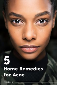 Watch This Video Beauteous Finished Cystic Acne Home Remedies that Really Work Ideas. Divine Cystic Acne Home Remedies that Really Work Ideas. Cystic Acne Remedies, Natural Acne Remedies, Home Remedies For Acne, Skin Care Remedies, Cellulite Remedies, Acne Skin, Acne Mask, Skin Mask, Teen Boys