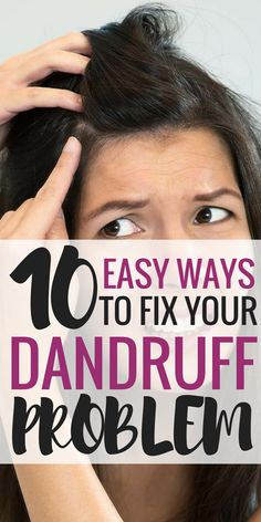 How to get rid of dandruff... The best post on dandruff remedies! The only remedy that actually got rid of my dandruff.