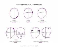 The Argenta scale offers a simple but effective way to assess the severity of deformational plagiocephaly. If you think your baby might have a moderate or severe head shape deformity, Technology in Motion can help you correct this.