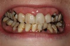 decayed teeth, unhealthy mouth