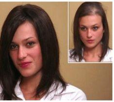 Natural Hair Loss Treatment, Natural Hair Growth, Natural Hair Styles, Excessive Hair Loss, Hair Fixing, Hair Loss Women, Healthy Hair Growth, Prevent Hair Loss, Hair Repair