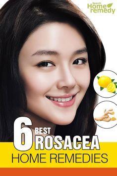 6-best-rosacea-home-remedies