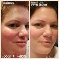 Rodan + Fields gives you the best skin of your life and the confidence that comes with it. Created by Stanford-trained Dermatologists, we understand skin. Our easy-to-use Regimens take the guesswork out of skincare so you can see transformative results. Redefine Regimen, Rodan And Fields Redefine, Cosmetics Ingredients, Makeup Needs, Heart And Lungs, Face Wash, Good Skin, Glowing Skin, Health And Beauty