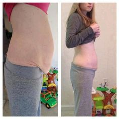 This lady only used one ultimate applicator (after her bypass surgery) to rid herself of the extra skin.  Imagine how she will look after she has the other 3 wraps she bought. :) https://nicolecarr.myitworks.com/