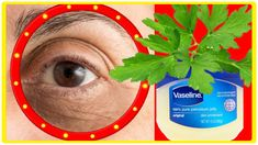 Eye Wrinkle, Homemade Skin Care, Vaseline, Dark Circles, Parsley, Serum, The Creator, Eyebags, Cosmetics