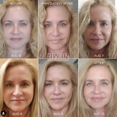 Non-Surgical Nose Job in Los Angeles Botox Cosmetic, Cosmetic Clinic, Liquid Facelift, Non Surgical Facelift, Aesthetic Doctor, Nasolabial Folds, Natural Contour, Dermal Fillers, Bralette Bikini