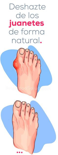 How to remove bunions naturally, hallux valgus, foot bones # bunions Herbal Remedies, Health Remedies, Home Remedies, Natural Remedies, How To Remove Bunions, Beauty Care, Beauty Hacks, Natural Treatments, Body Care