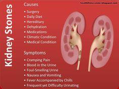 kidney stone symptoms in women | kidney stones symptoms, kidney, Human Body