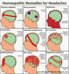 Homeopathic Remedies for Headaches | You have a headache? Child have a headache? Homeopathic remedies can relieve…naturally. This is a great visual diagram to help you find a remedy to suit. by Yamahaschen